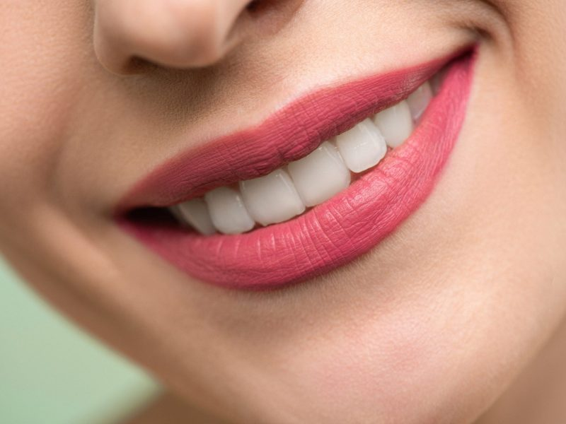 Sonrisa-Estética-chica