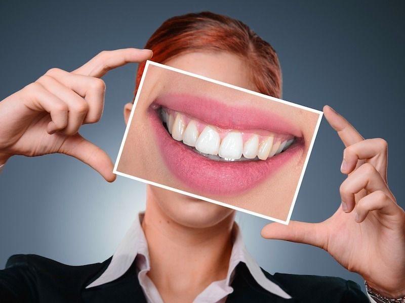 Estética Dental Sonrisa