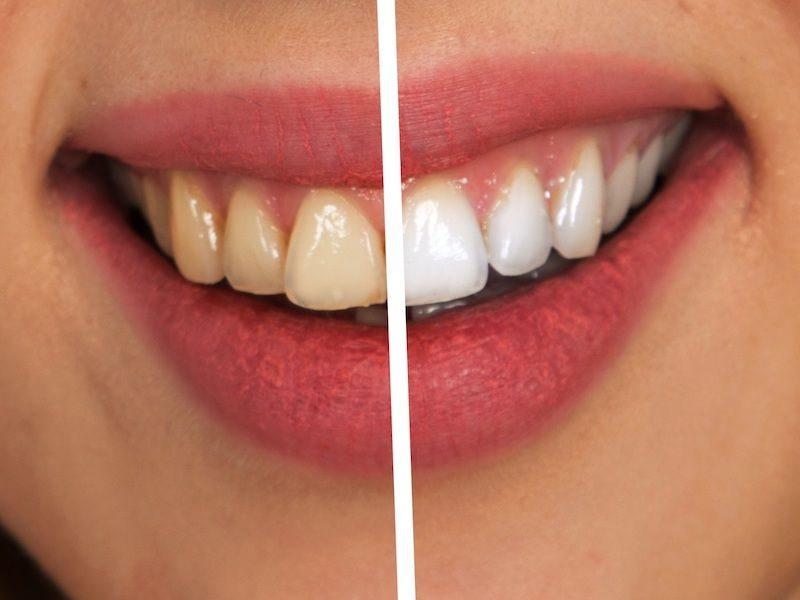 Estética Dental Sonrisa Antes y Después